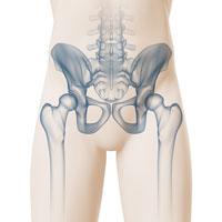 Hüftschmerzen - Ursache - Behandlung