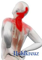 Nackenschmerzen und kopfschmerzen