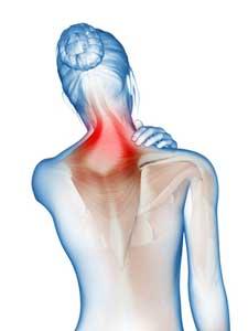 Nackenschmerzen und Kopfschmerzen: Symptome des HWS-Syndrom